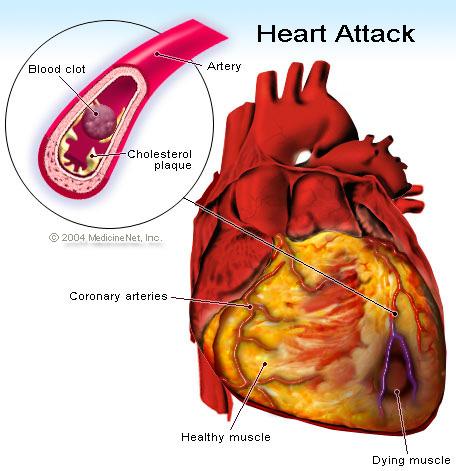 Homocysteine, cardiovascular disease and MTHFR