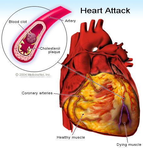 Homocysteine, cardiovascular disease and MTHFR